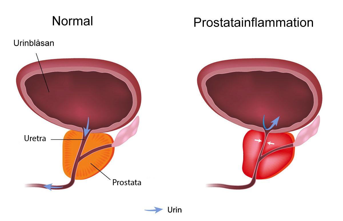 Smärta nedre delen av buken