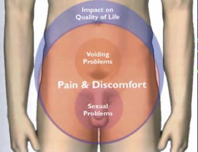 smärta nedre delen av magen